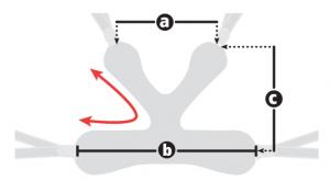 Medidas soporte pélvico E-Pacer - Rehagirona