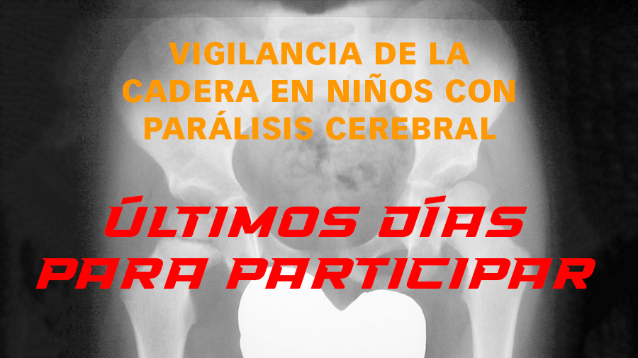 """Últimos días para participar en el proyecto """"Vigilancia de la cadera en niños con parálisis cerebral"""""""